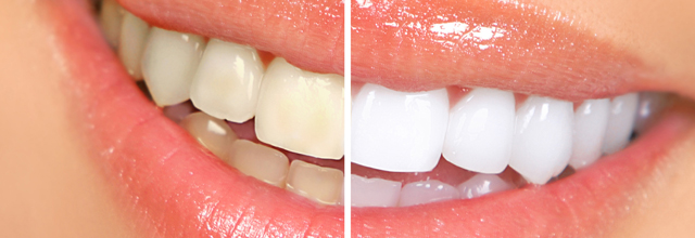 Tooth Whitening Tips The Natural Way Tooth Whitening Tips The Natural Way