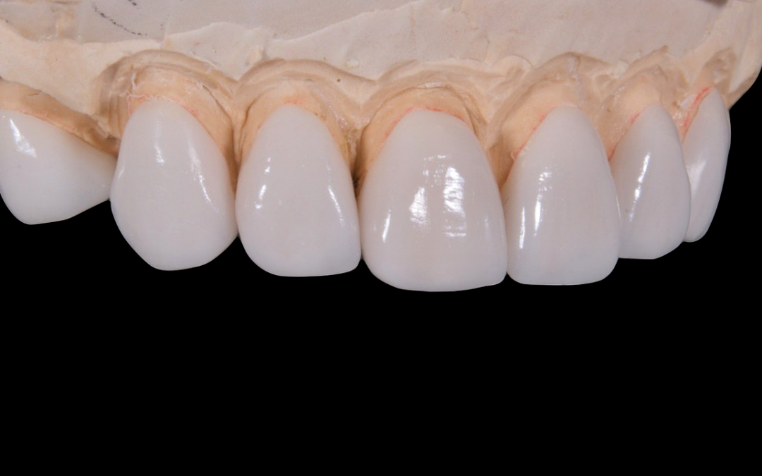 Salvage your smile with crowns and bridges from Lincoln Park Smiles