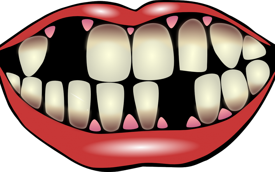 Tooth Loss in America: Experience on of the most advanced and convenient dental restorations at Lincoln Park Smiles