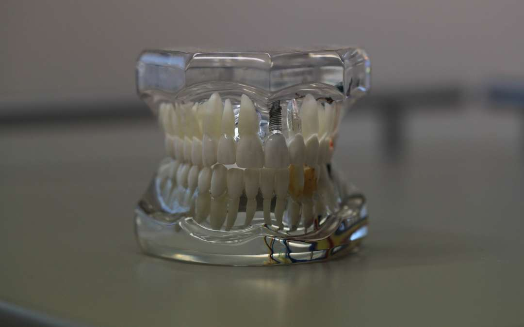 Sick of your wobbly, uncomfortable dentures? Discover crown and dental implant restorations at Lincoln Park Smiles!