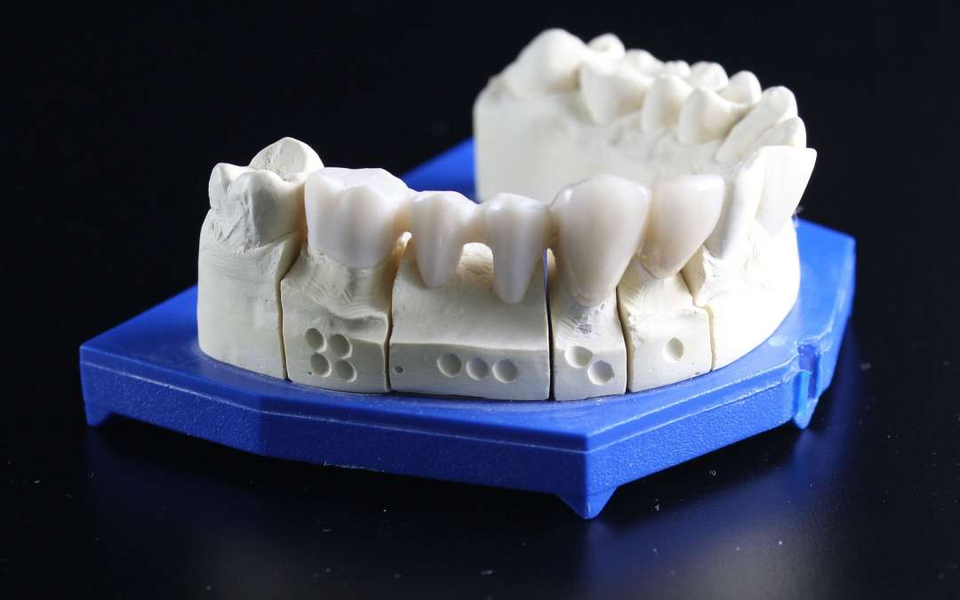 Save Time and Money with Same Day Crowns!