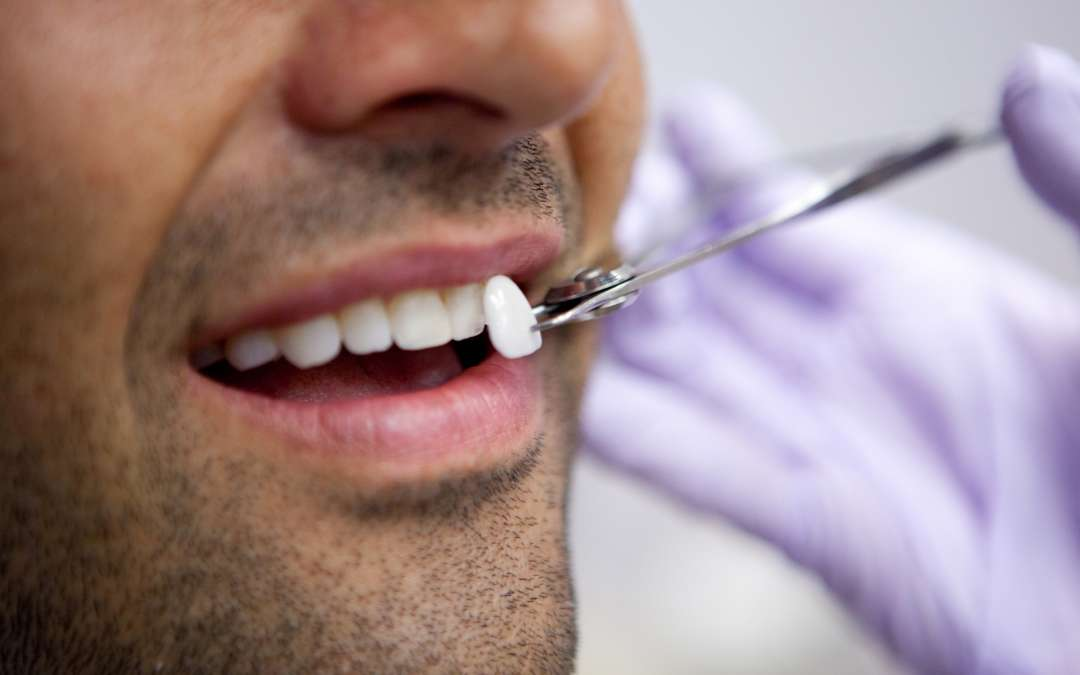 Perk Up Your Smile with Porcelain Veneers