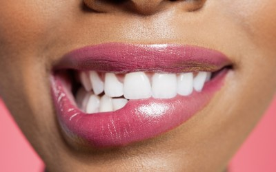 Whiten Your Teeth Safely and Professionally