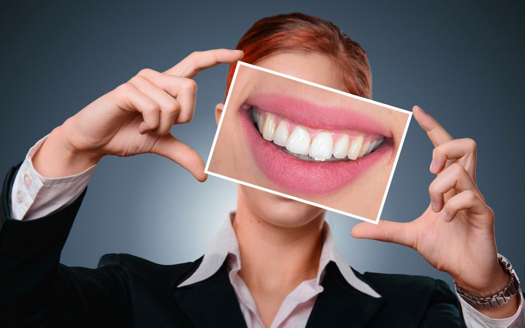 What Is A Smile Makeover and Is It for You?