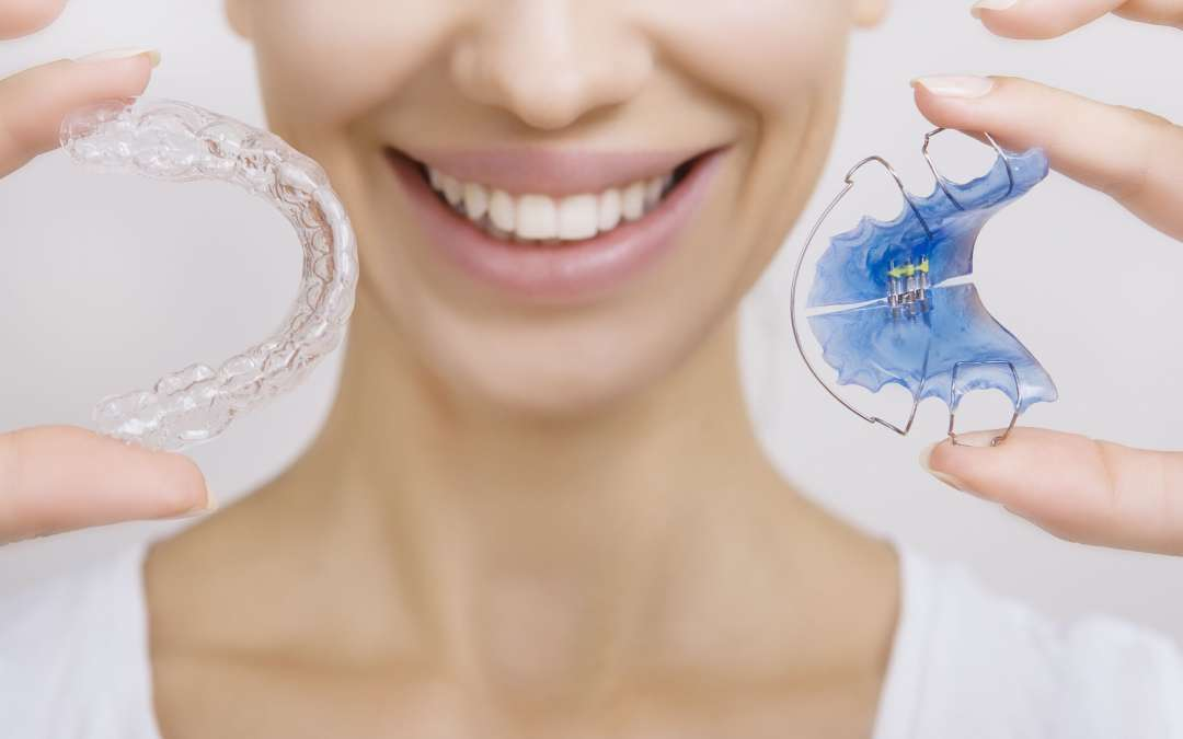 Do You Need to Wear Retainers Forever?